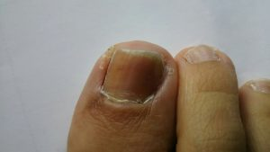 入る 爪 線 に 黒い が 爪に縦線が入る病気一覧